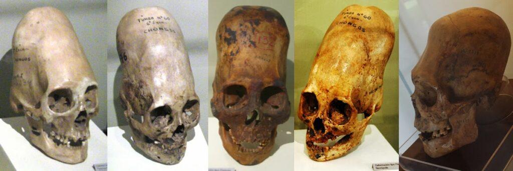 Elongated skulls found in Peru