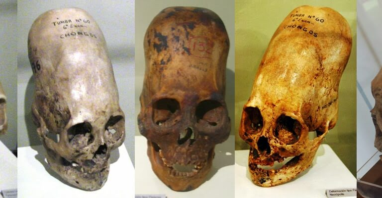 Elongated Skulls: A Mindboggling Global Phenomenon