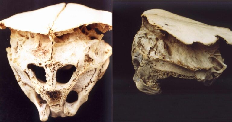The Rhodope Skull: The mysterious cranium of a real-life Alien?