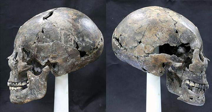 Researchers unearth strange Alien-like, elongated Skull in Korea