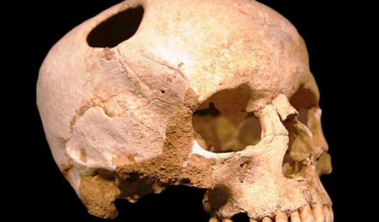 Researchers discover evidence of 7,000-year-old head surgery