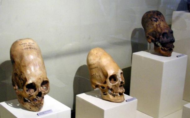 Elongated skulls on display at Museo Regional de Ica