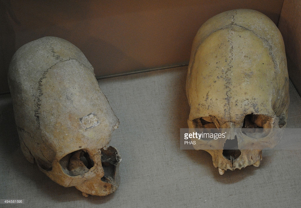 Sarmatians. Two deformed human skulls. Probably dated in the 3rd century BC. Kerch Historical and Archaeological Museum. Autonomous Republic of Crimea. Ukraine. Notice their similarity to the Paracas skulls found half way around the world in Peru.