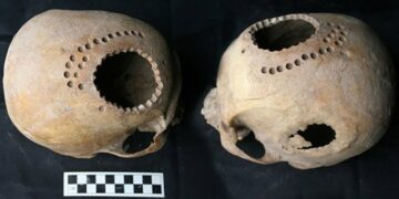 Image of a skull where surgical trepanation was performed on.