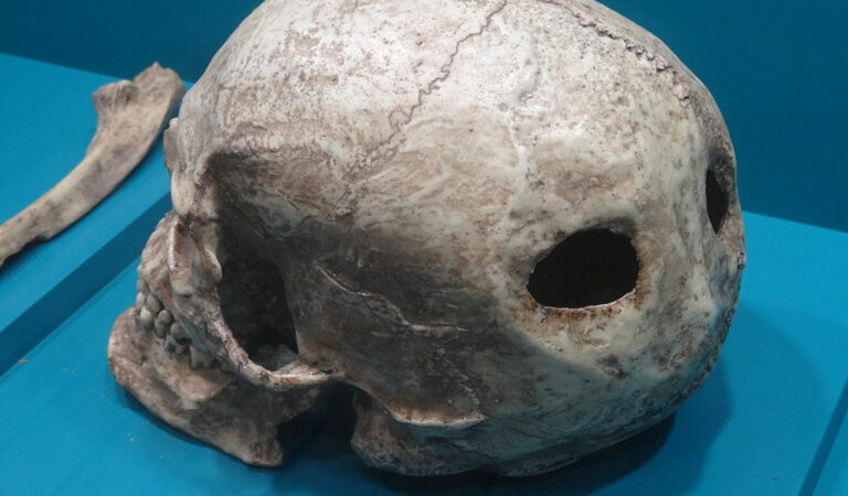 Evidence of 2,000-year-old brain surgery found in Russia
