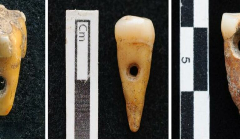 Bizarre Stone Age jewelry made from human teeth found in ancient Turkish city